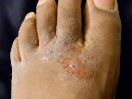 ringworm in humans showing fungus on the feet also called Athlete's Foot