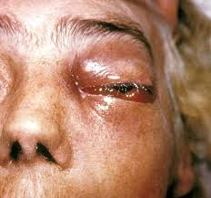 ringworm in humans showing ringworm fungal infection.on the eye